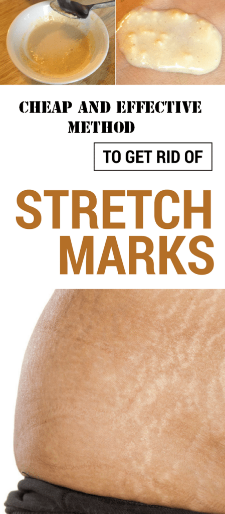 Cheap and Effective Method to Get Rid of Stretch Marks in a Week!