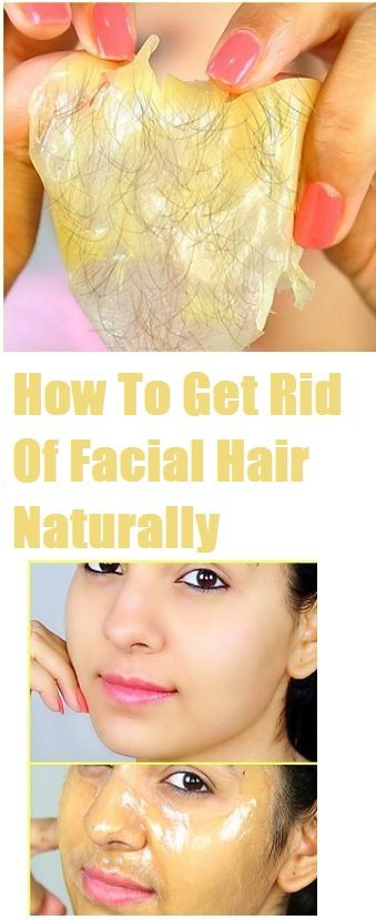 How To Get Rid Of Facial Hair Naturally – Skin Problem