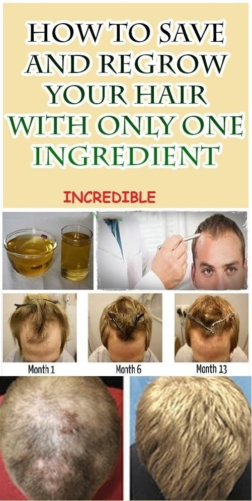 How to Save and Regrow Your Hair With Just One Ingredient
