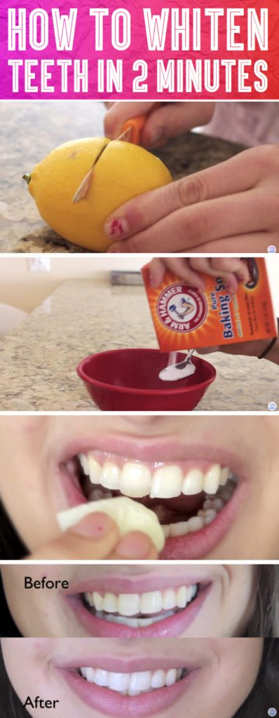 Woman Finds This Strange Trick To Whiten Her Teeth In 2 Minutes